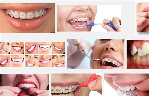 Ortodonti-Diş Hekimliği ve Sağlık Çevirileri İçin Sitemize Tıklayın!